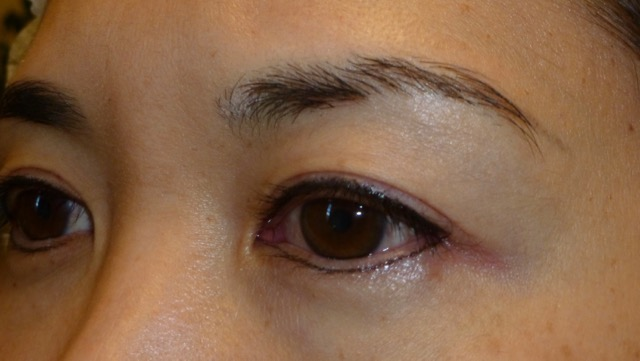 How Swollen Do The Eyes Get Right After An Eyeliner Tattoo Ideas And Designs