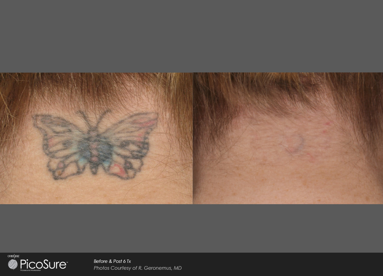 Laser Ink Picosure Laser Tattoo Removal Specialists Ideas And Designs
