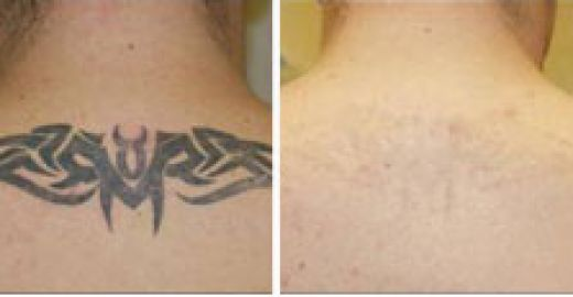 Laser Tattoo Removal Laser Room Ideas And Designs