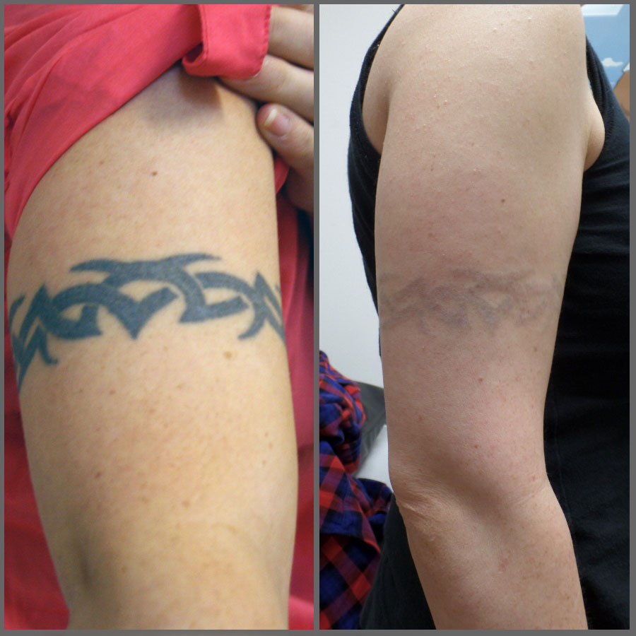 Laser Tattoo Removal Mystique Medical Day Spa Ideas And Designs