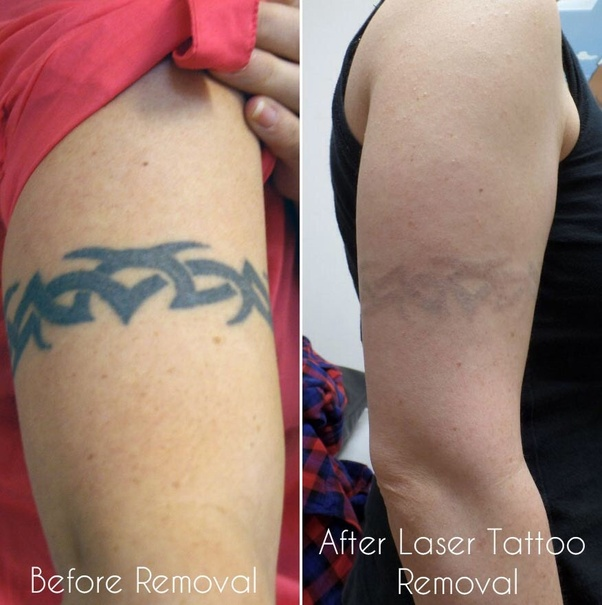 How To Remove A Permanent Tattoo Quora Ideas And Designs