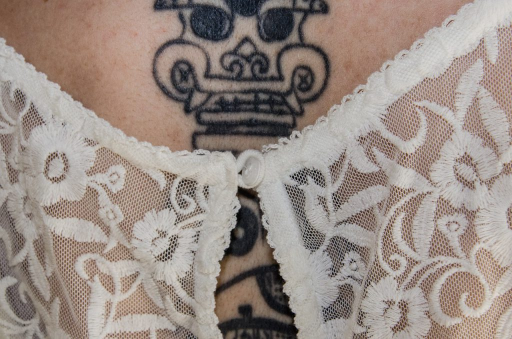 Can All Tattoos Be Removed With Laser Ideas And Designs