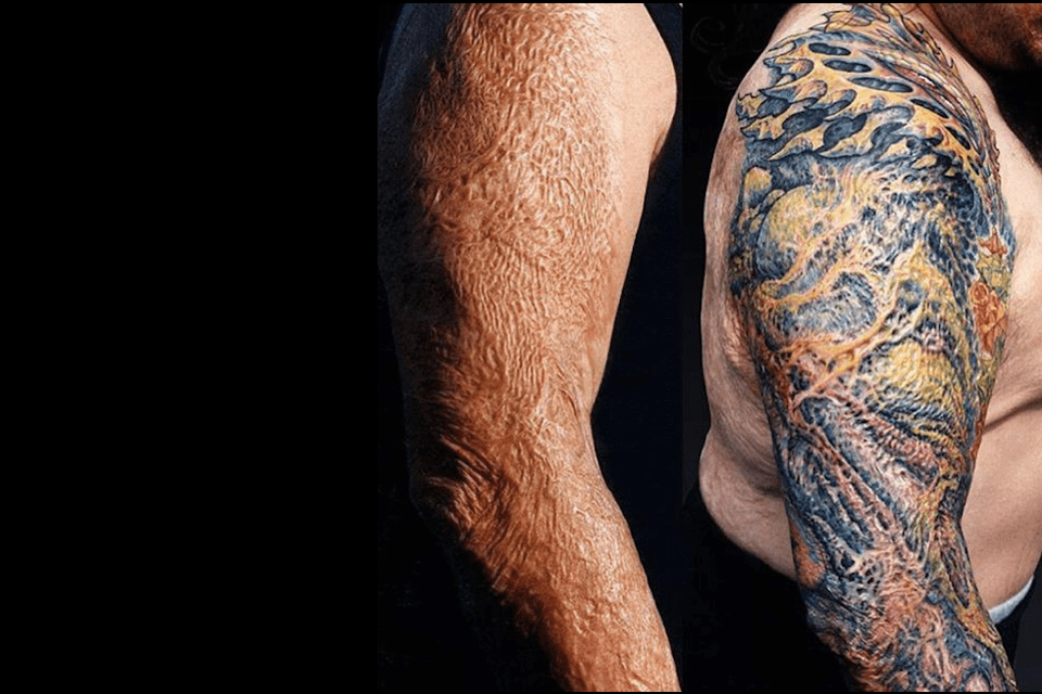 The Firefighter Who Got A Tattoo Over His Skin Graft The Ideas And Designs