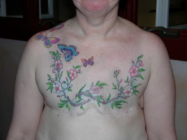 Affirming Life After Br**St Cancer Tattoo By Chris Dingwel Ideas And Designs