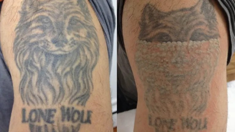 Boom In Tattoo Removal Businesses Ideas And Designs