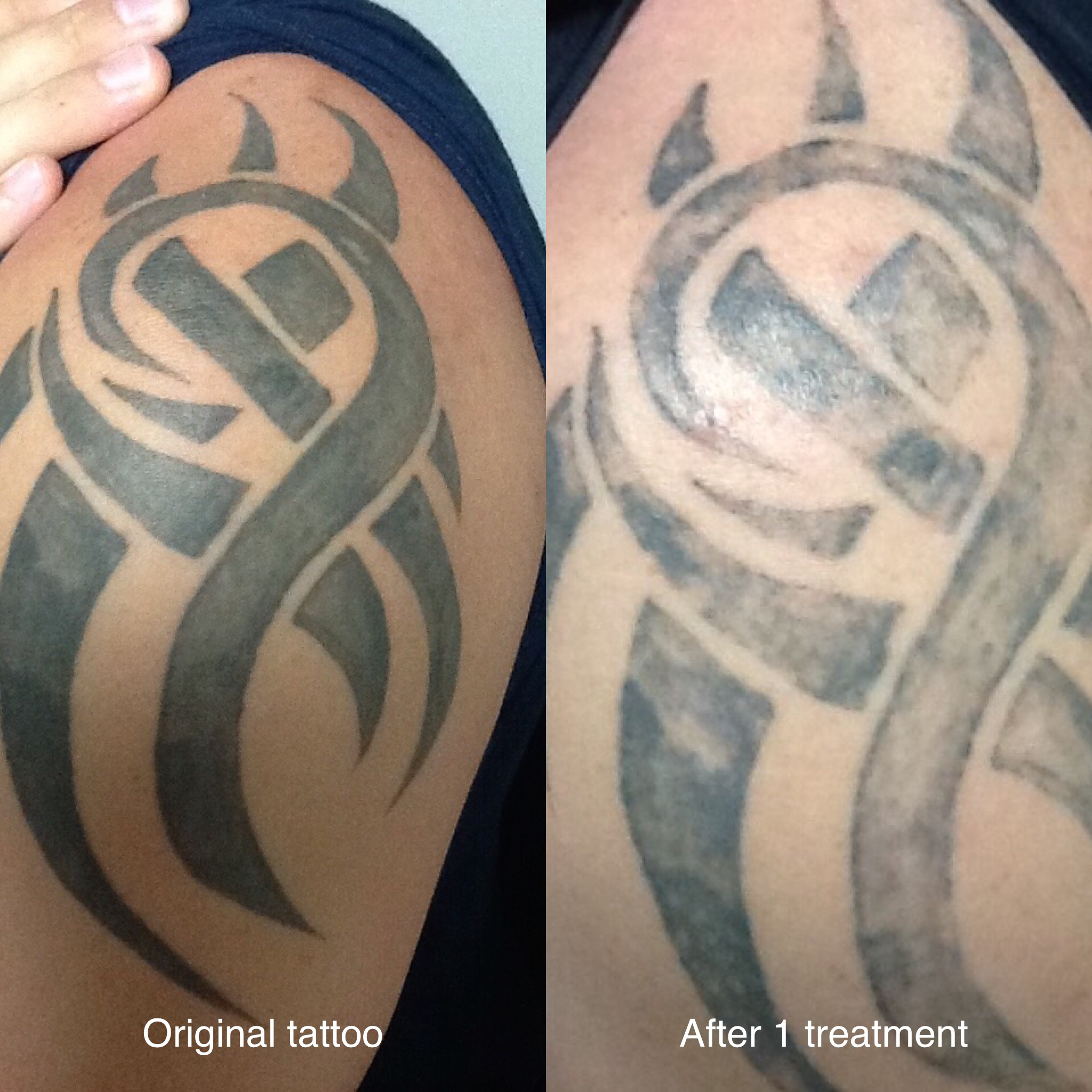 Gallery – Before After Photos – Unleash Your Healing Power Ideas And Designs
