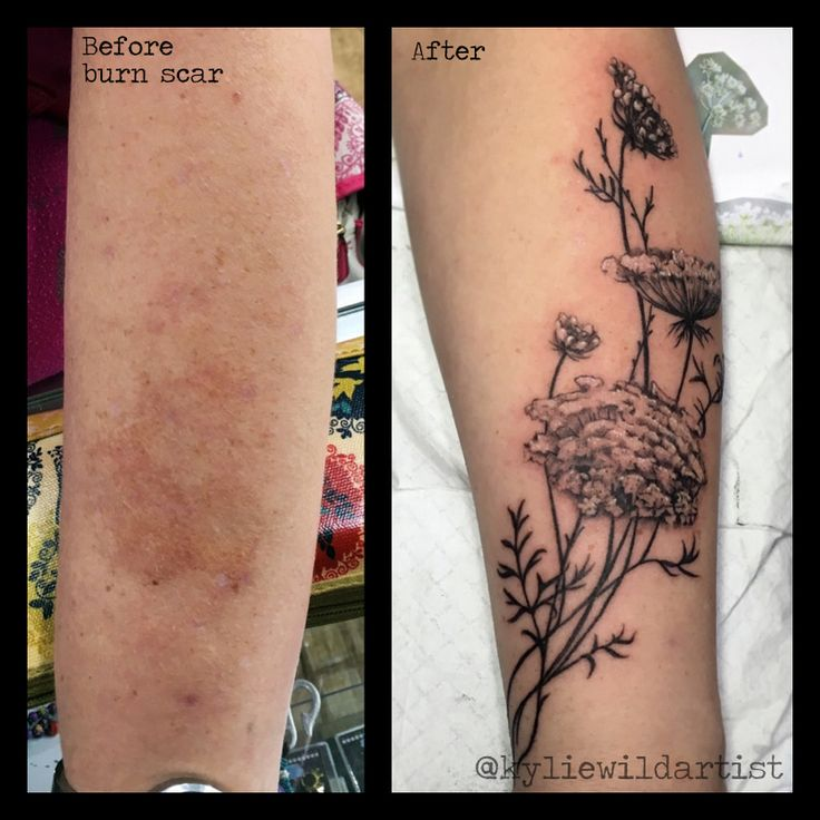 Burn Scar Cover Up Tattoo Queen Ann S Lace Flowers Black Ideas And Designs