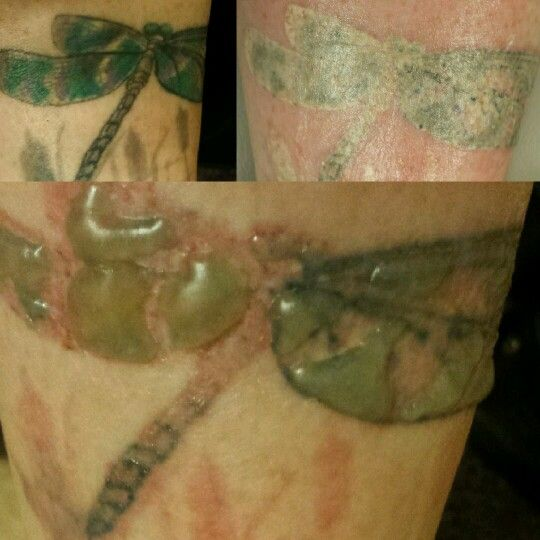 25 Best Ideas About Picosure Tattoo Removal On Pinterest Ideas And Designs