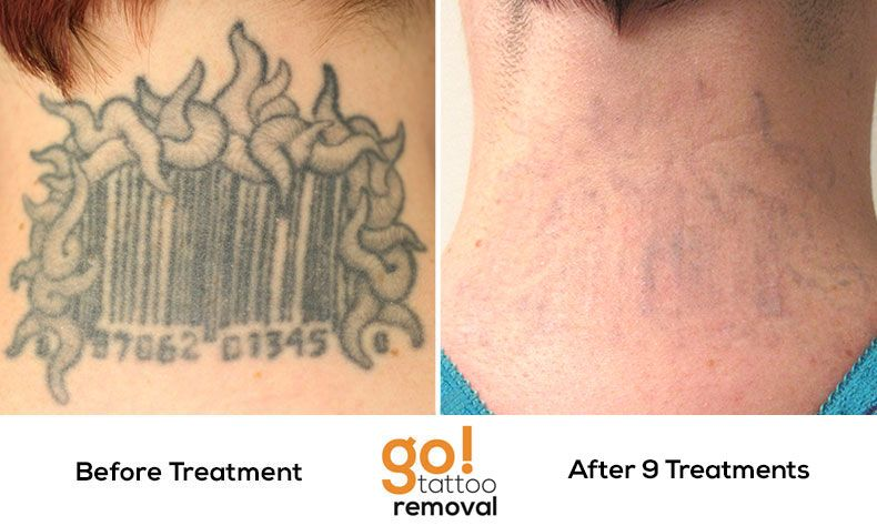 After 9 Laser Tattoo Removal Treatments This Tattoo Is Ideas And Designs