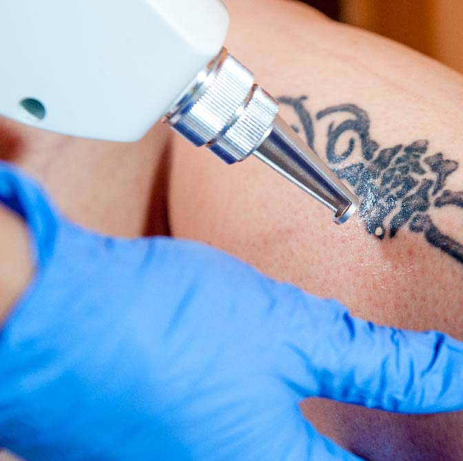 Tattoo Removal Services Medical Rejuvenation Spa Indiana Ideas And Designs