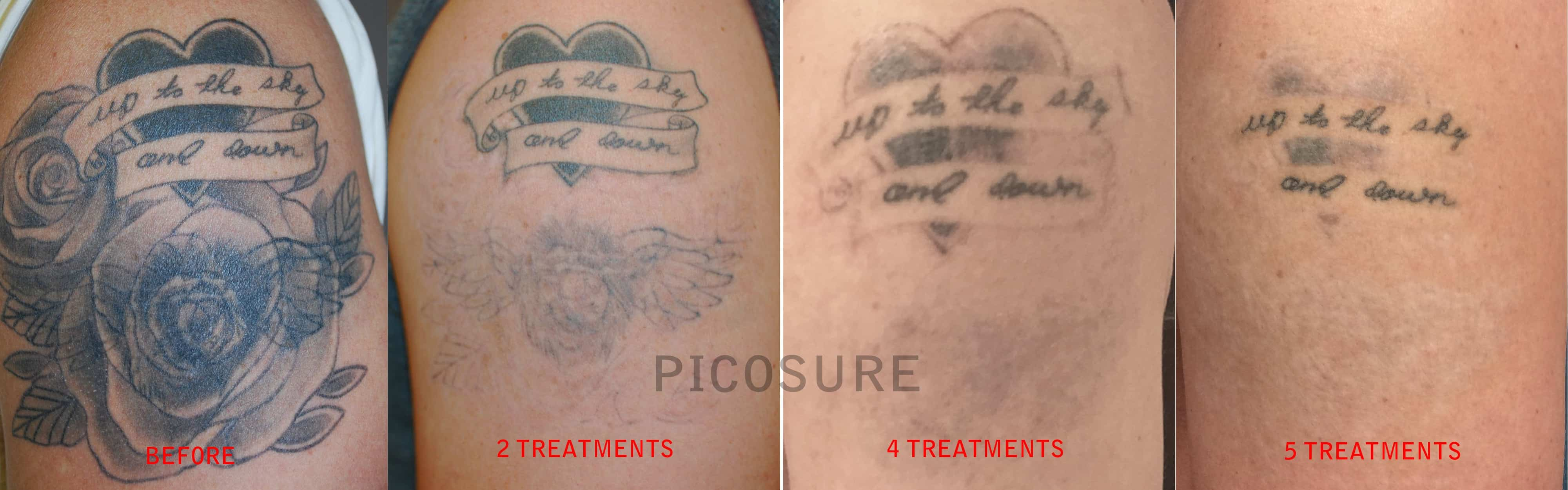 Picosure™ Laser Tattoo Removal Chicago Il Chicago Br**St Ideas And Designs