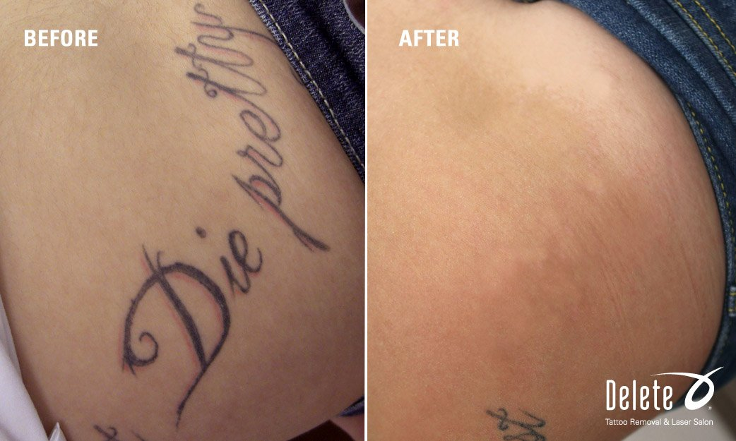 Phoenix Picoway Laser Tattoo Removal Delete Tattoo Removal Ideas And Designs