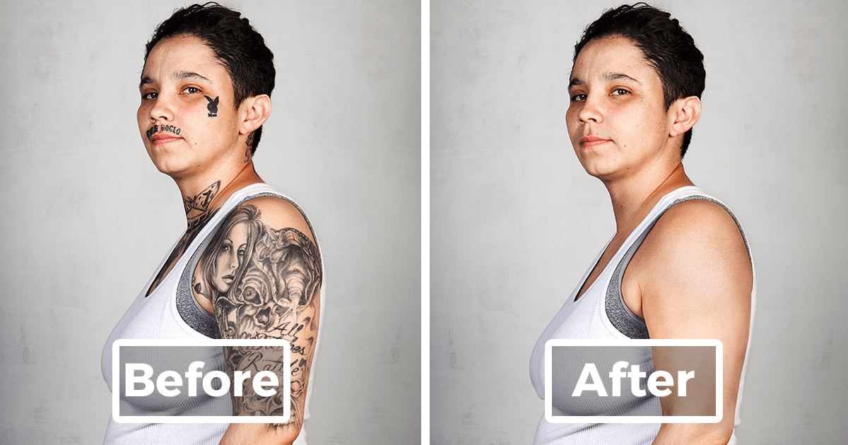 Ex Gang Members With Their Tattoos Removed Demilked Ideas And Designs