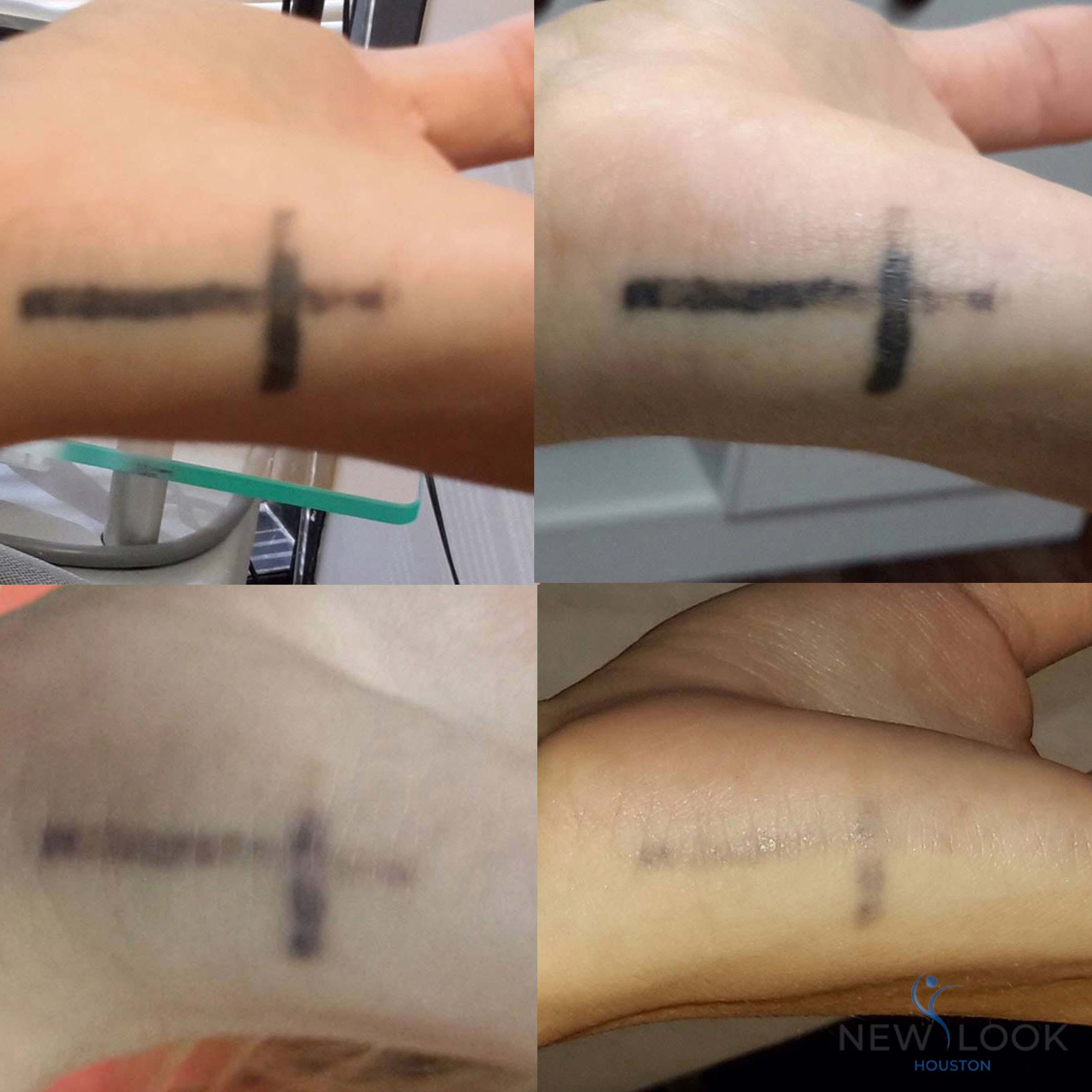 How Long After Tattoo Removal Can You Swim About Foto Ideas And Designs