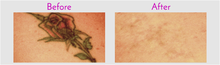 Tattoo Removal In Jacksonville At Obi Plastic Surgery Ideas And Designs