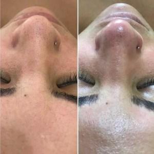 limpeza de pele profunda, antes e depois, pele, estetica, tay akemi, mulher
