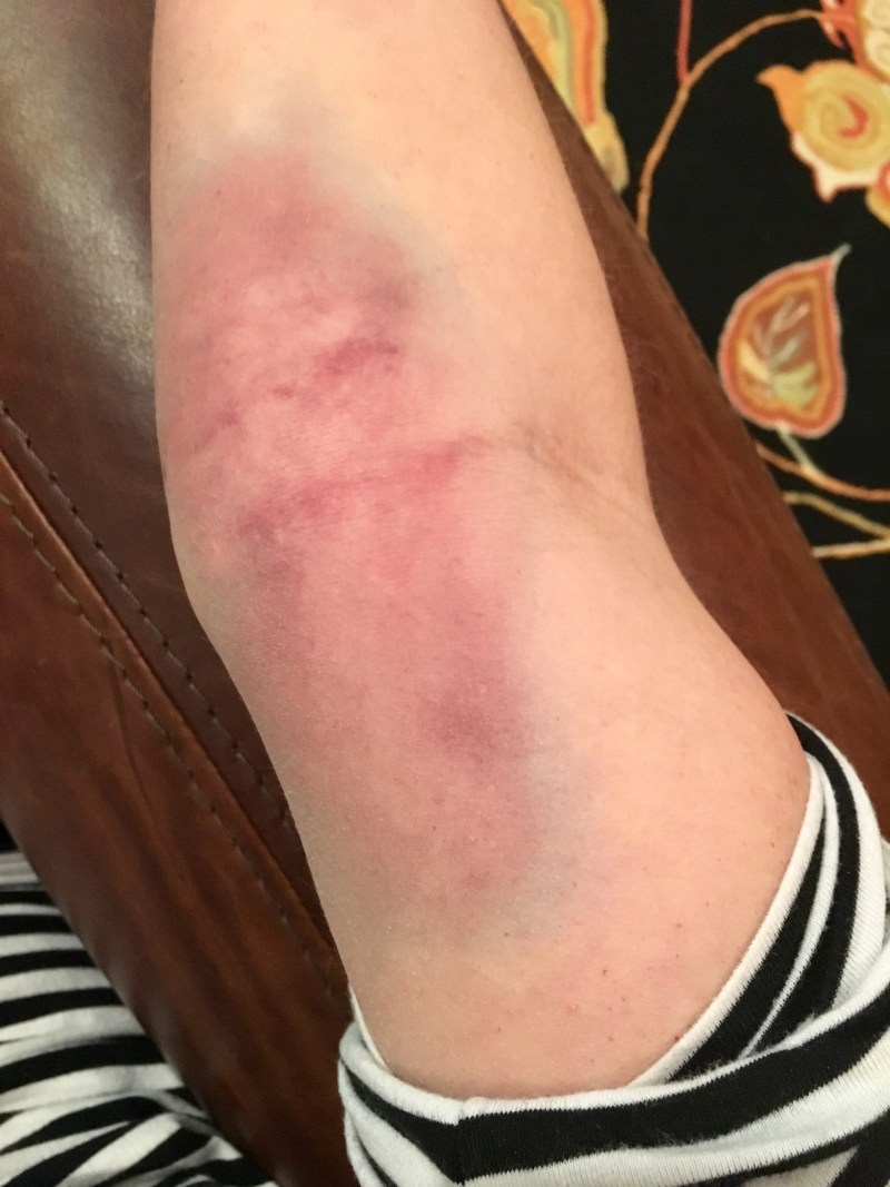 Bruised arm from archery injury.