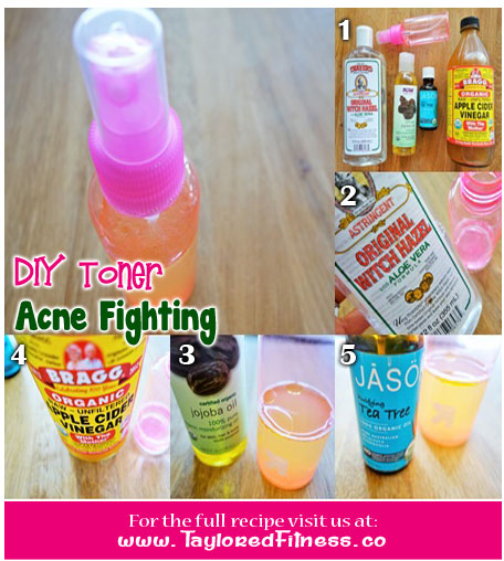 acne fighting toner