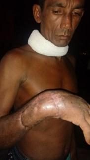 José Ribamar durch eine Machete verletzt/ Foto: Gamela