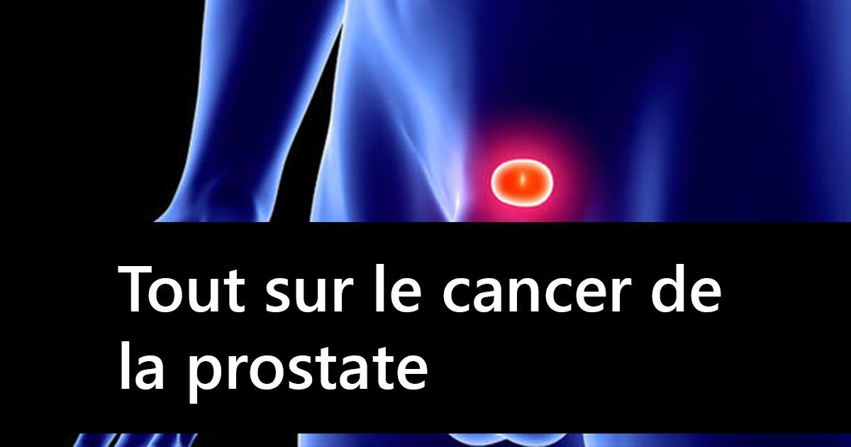 Tout savoir sur le cancer de la prostate