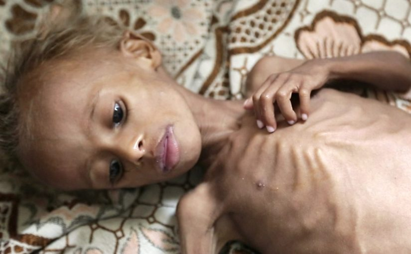 What if YOUR child was dying of starvation?