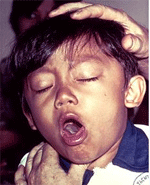 Annoying Cough 2