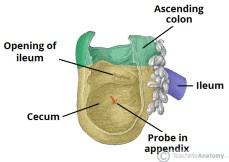 Fig 1 - The cecum. Note the blind end inferiorly, and its continuity with the ascending colon superiorly.