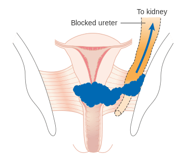 Cervical Cancer - HPV - Clinical Features - Management - TeachMeObGyn