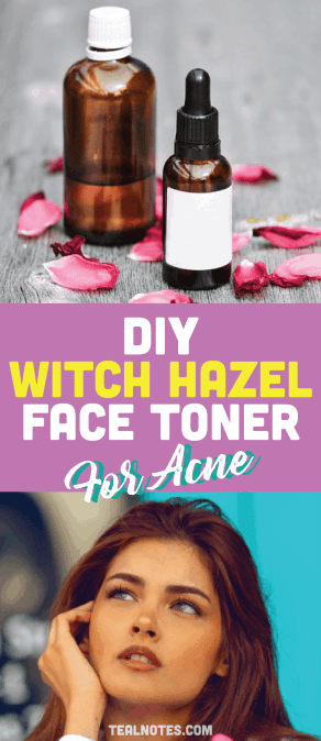 DIY toner, how to use witch hazel on face, DIY Witch Hazel facial toner for acne