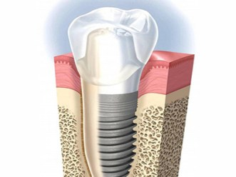 impianto-dentale-con-corona1