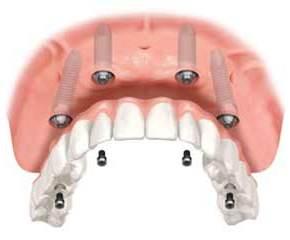 Le aspettative sulla terapia dell'impianto dentale