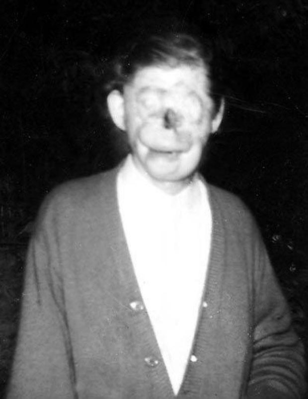 Charlie No Face ~ old creepy photos