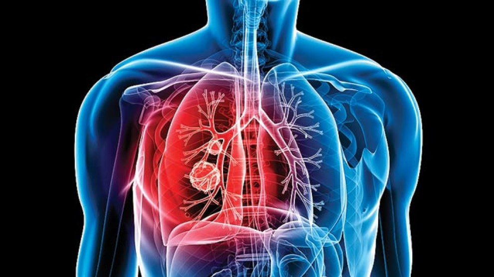 A new substance is able to cure Tuberculosis effectively