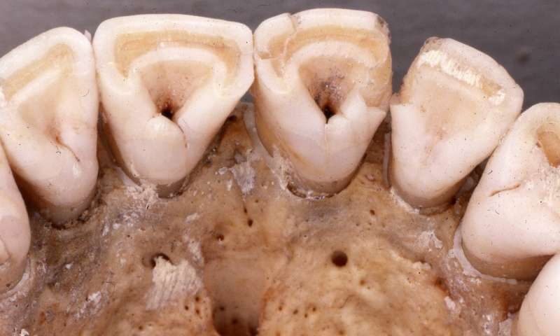 Breastfeeding Affected Tooth Shape In Pre-Native Americans