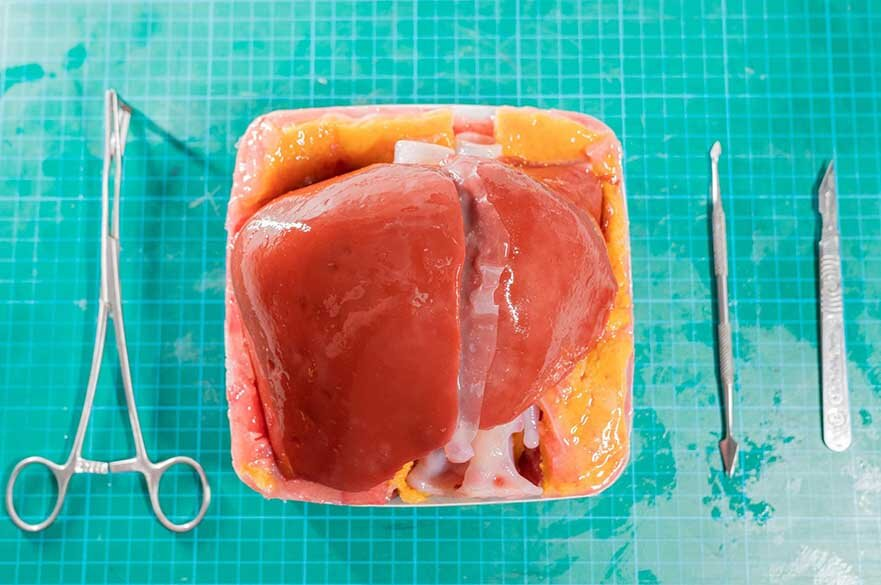 Liver in 3D