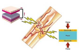 Triboelectric nanogenerators (left) and piezoelectric materials (right) are being investigated for their potential to improve bone's natural healing properties. (Copyright: NIMS)