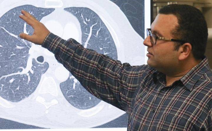 Researcher Created An AI System to Spot Often-Missed Lung Cancer Tumors