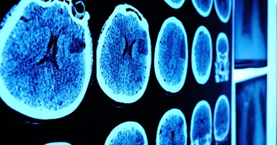AI enhances MRI images to identify brain cancer molecular markers