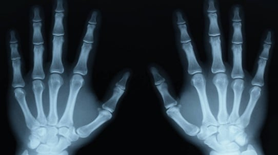 X-RAY IMAGES_accidental inventions