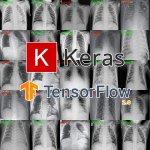 Detecting COVID-19 in X-ray images with Keras, TensorFlow, and Deep Learning
