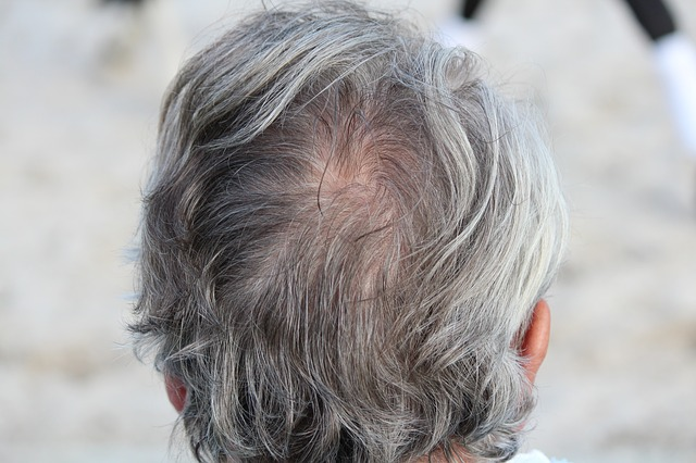 Grey Hair Causes, Home Remedies and Best Hair colors | Grey Hair ...
