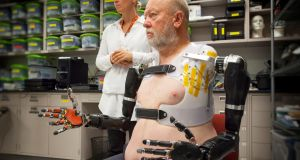 Double Amputee Controls DARPA Robotic Prosthetic Arms With His Mind