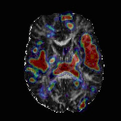 Brain scan (National Institute of Mental Health)