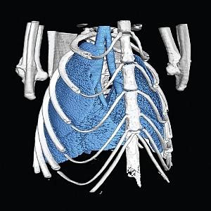Synchrotron lung image (Monash University)