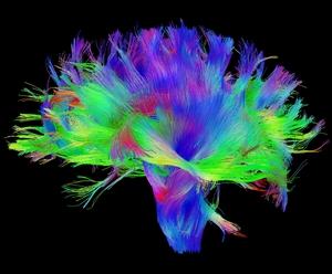 Diffusion tensor image of brain