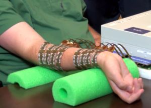 Neurobridge stimulation sleeve