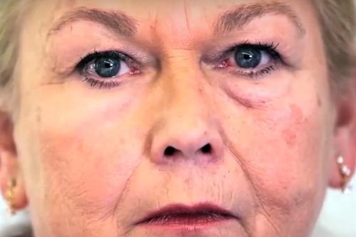 Test of XPL on skin under eyes