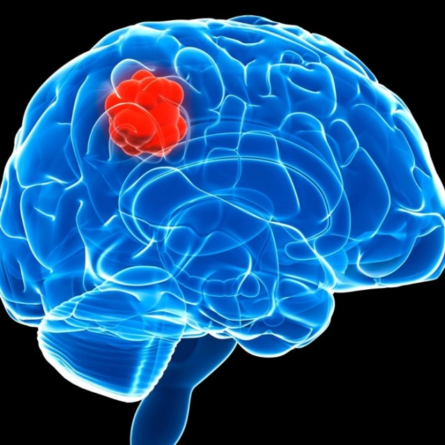 Brain tumor graphic