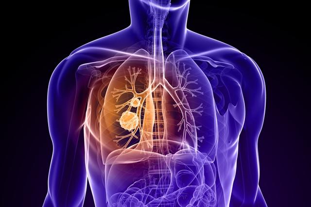 Lung cancer illustration