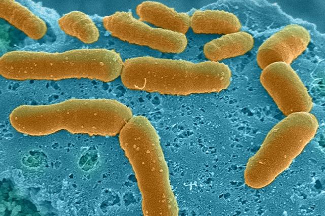 Human gut microbes